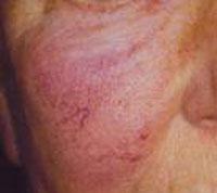 acne steroidea terapia