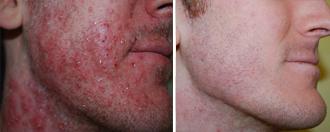 Posti sulle medicine di faccia con pelle sensibile